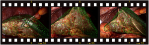 film_strip_augmented_liver